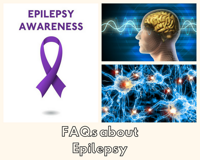 FAQs about Epilepsy